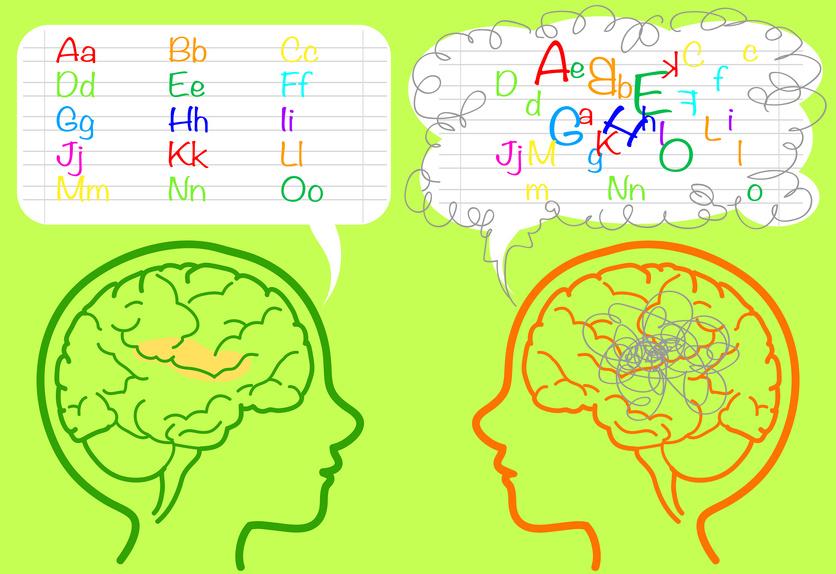 Le cerveau d'un dyslexique vis à vis de l'orthographe.